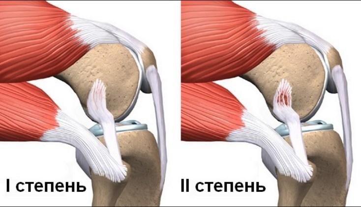Что делать если не разгибается колено? Что делать: колено не разгибается до конца. Видео