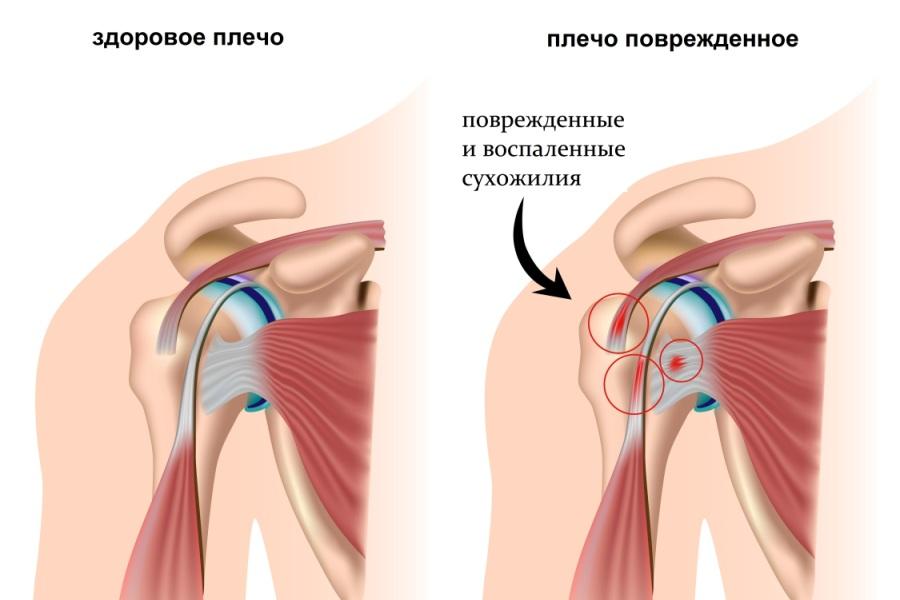 Растяжение связок плечевого сустава симптомы лечение диагностика