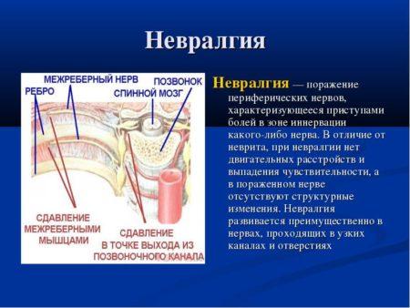 Бывает ли температура при межреберной невралгии у детей