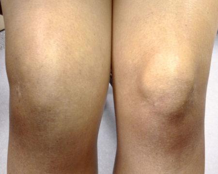 Почему болит шишка под коленом