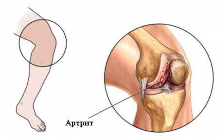 Что болит под коленом сзади при разгибании ноги