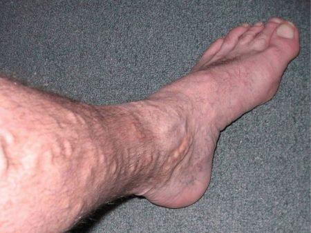 Как лечить отек голеностопного сустава после травмы