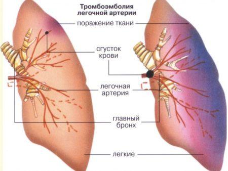 Озоновые уколы для суставов отзывы