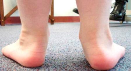 Физиотерапия при вальгусной деформации стопы у детей