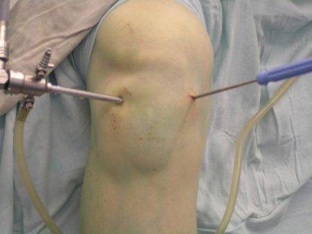 Болит тазобедренный сустав когда лежишь