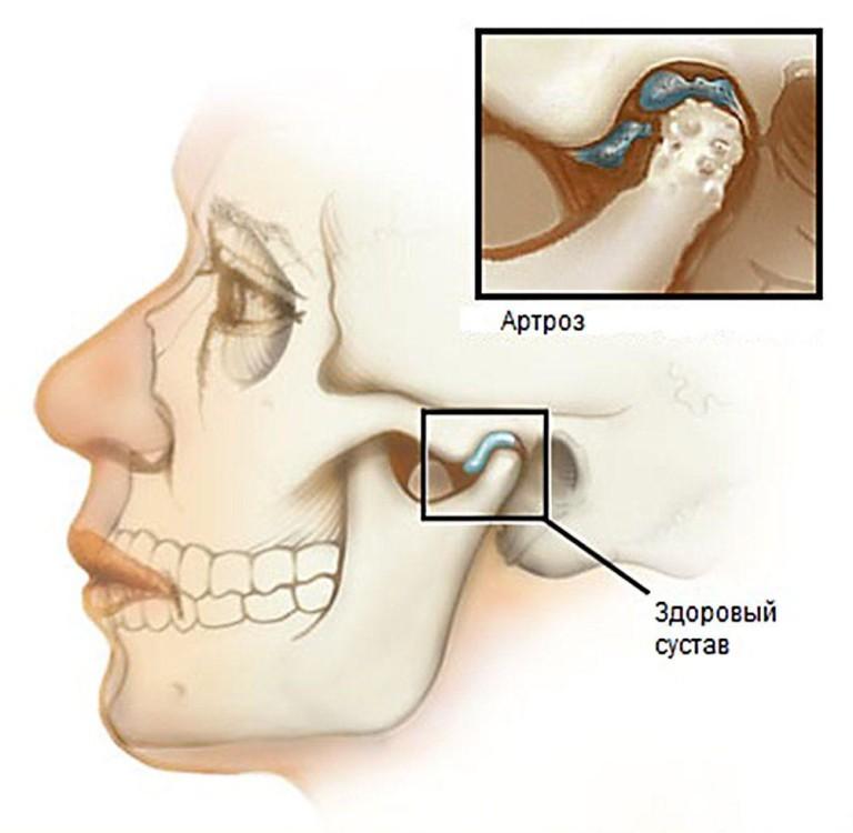 Воспаление височно челюстного сустава симптомы — Суставы