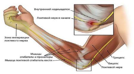 Туннельный синдром локтевого нерва лечение