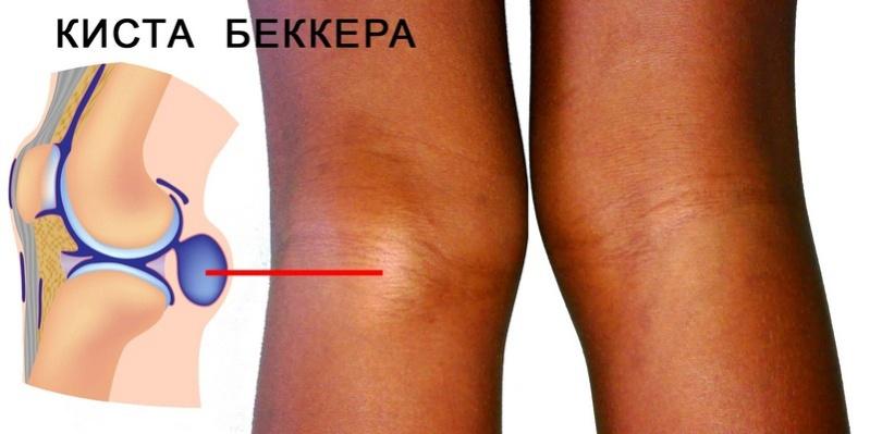 Что такое киста бейкера подколенного сустава и как лечить