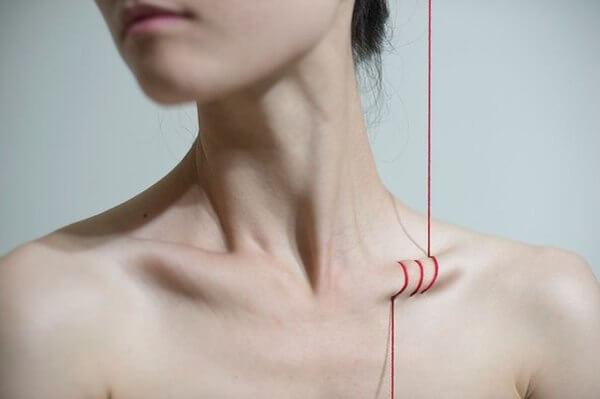 Как избавиться от отёка над ключицей при остеохондрозе и чем он опасен?