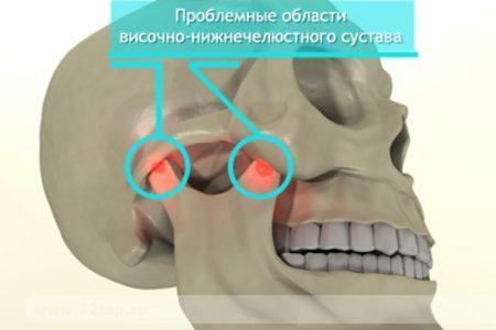 Болит челюсть в области сустава