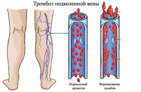 Киста беккера под коленом лечение