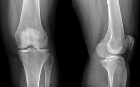 Чем снять боли в колене хруст в колене