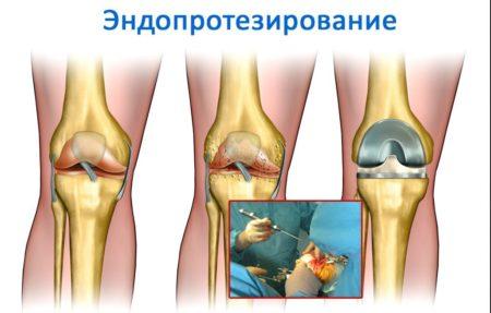 Почему хрустят суставы в коленях при приседании и болят