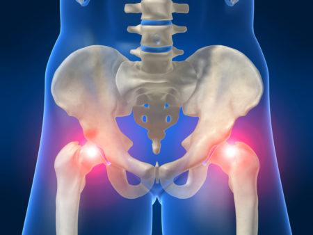 Лечение перелома тазобедренного сустава у пожилых в домашних условиях thumbnail