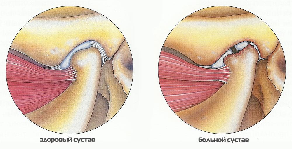 Артрит челюстно лицевого сустава, симптомы и лечение: 7 признаков
