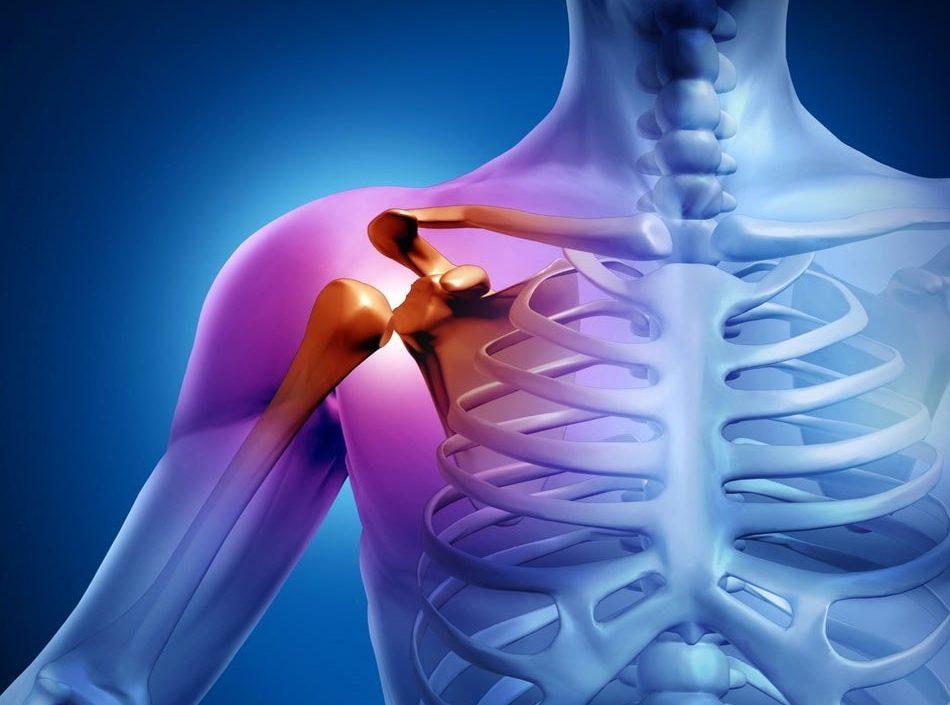 Лечение перелома большого бугорка плечевой кости