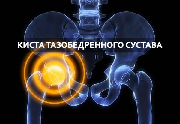 Киста тазобедренного сустава: что это такое, симптомы и лечение