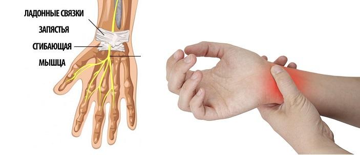 Полный комплекс упражнений ЛФК для лучезапястного сустава: лечебная гимнастика после всех видов травм, тренировка для восстановления, физкультура при болях