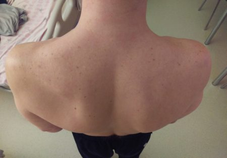 Как лечить кисту головки плечевого сустава