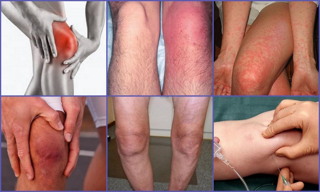 Препателлярный бурсит коленного сустава — симптомы и лечение