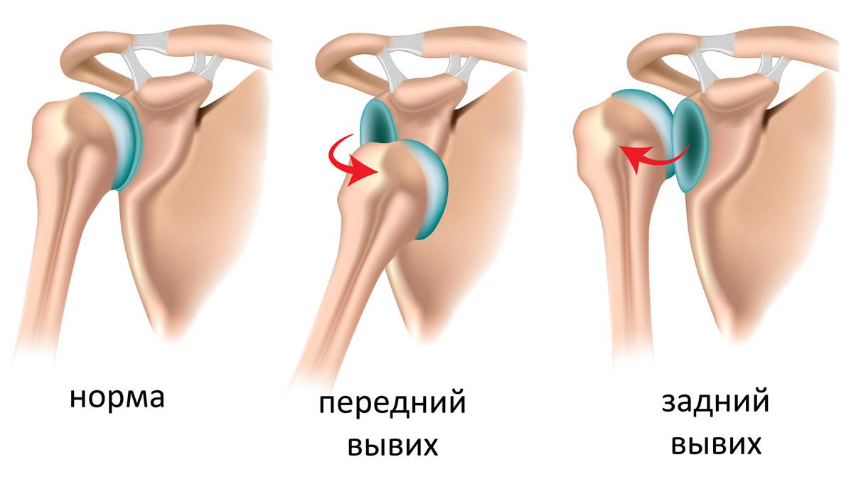Лфк после операции на плечевом суставе
