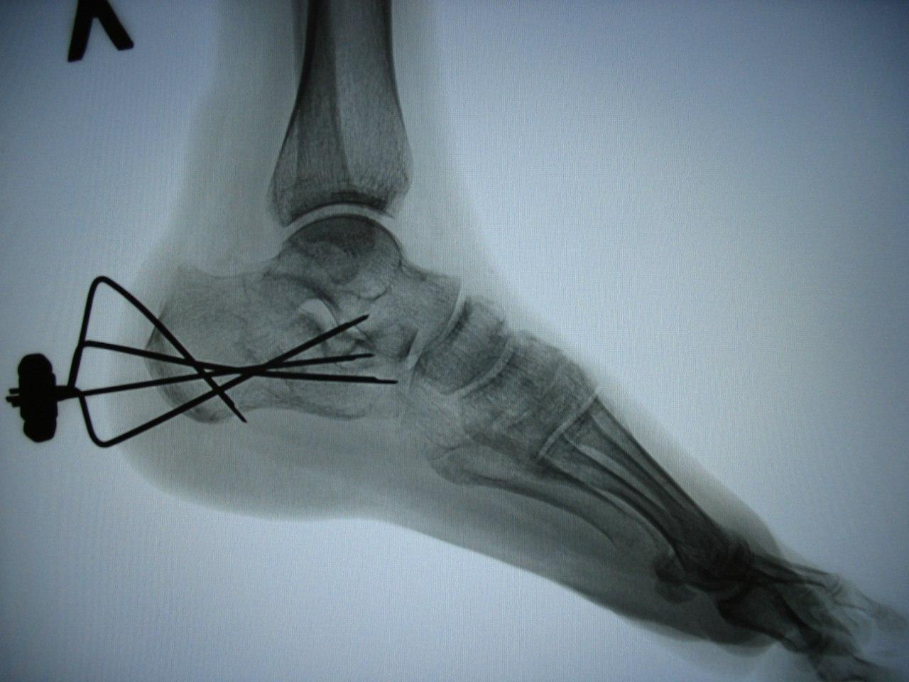 Лечение перелома пяточной кости