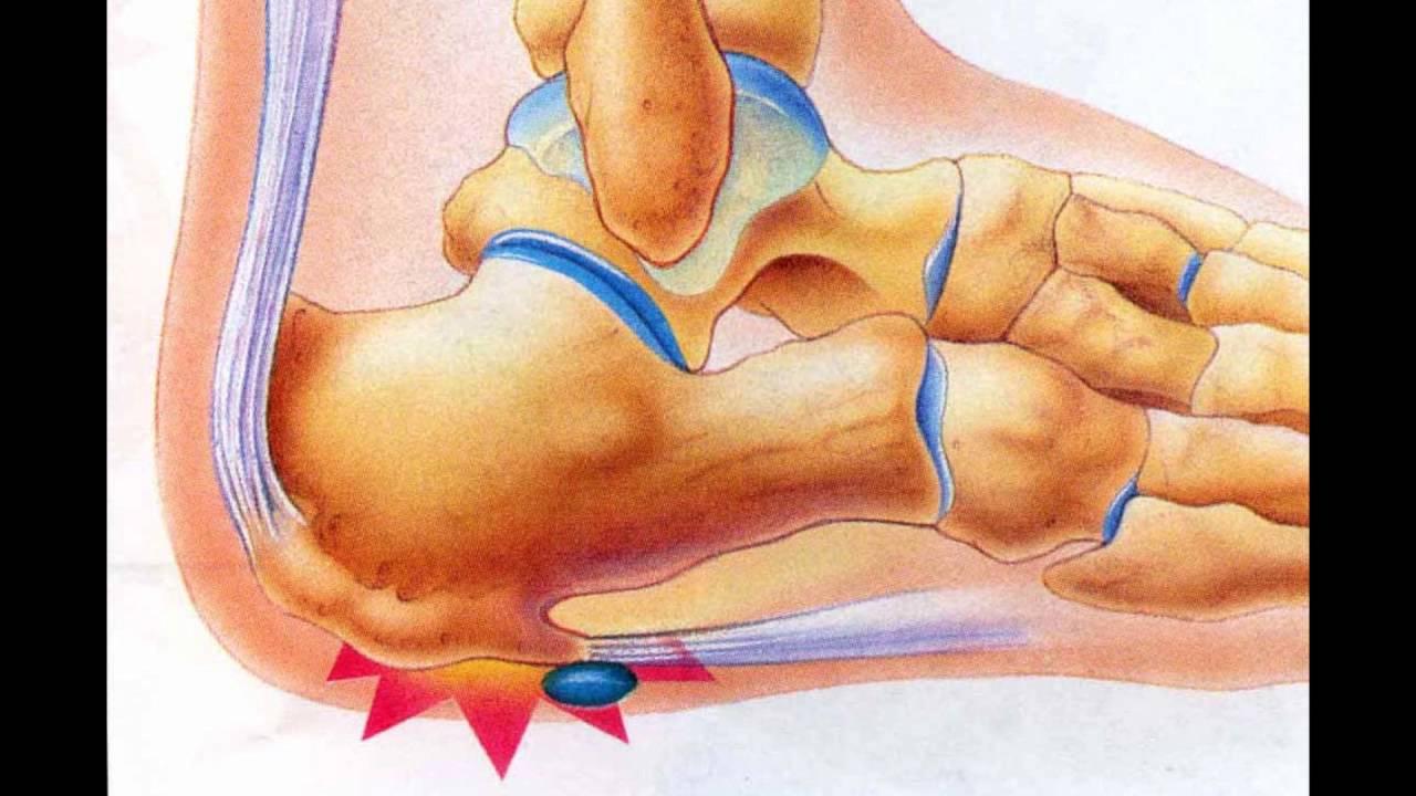 Ушиб пятки после прыжка: как лечить в домашних условиях