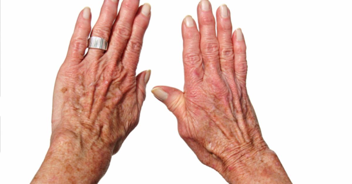Узелки Гебердена и Бушара: лечение, диагностика