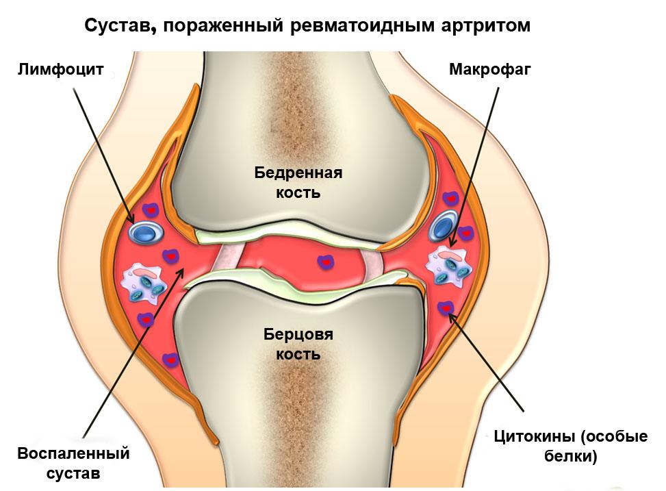 Ревматоидный артрит - виды способы лечения профилактика и диагностика