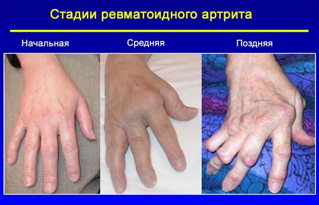Зарядка при ревматоидном артрите