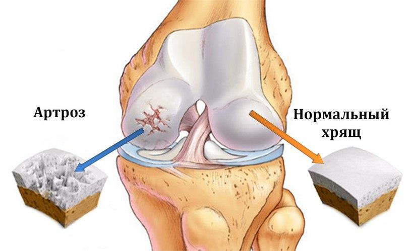 Ходьба на коленях при артрозе коленного сустава