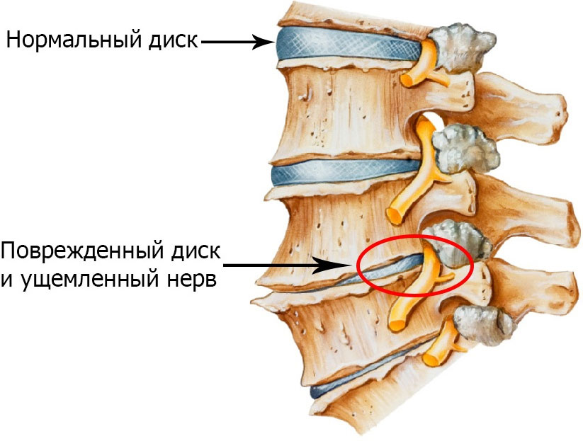 Разрешается ли быстрая ходьба при остеохондрозе