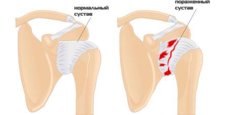 Лфк при ревматоидный артрит и ее противопоказания thumbnail