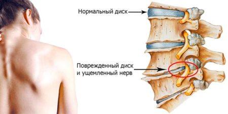 Польза обливания холодной водой при остеохондрозе