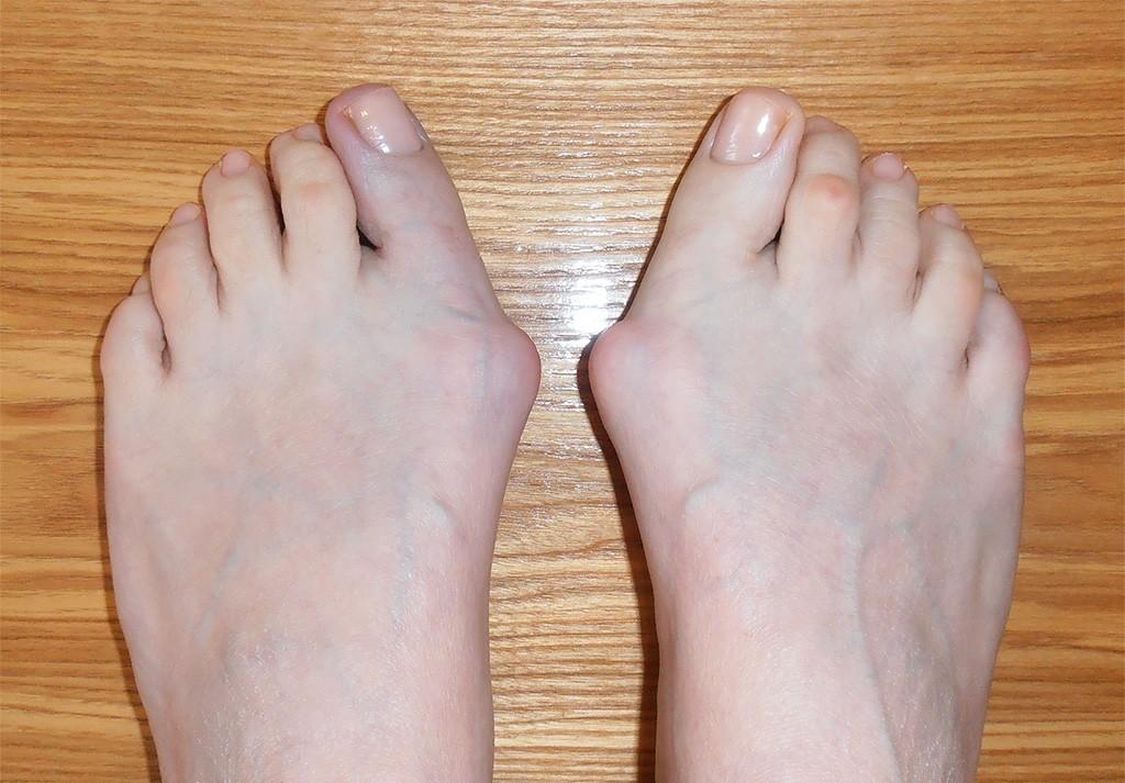 Удаление косточек на ногах лазером: эффективность, стоимость операции, отзывы