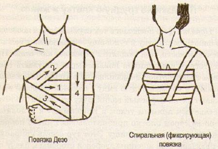 Перевязка на плечевой сустав