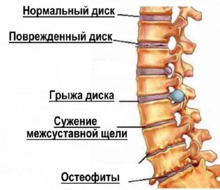 Следует точно оценить степень поражения остеохондрозом, чтобы подобрать эффективное лечение