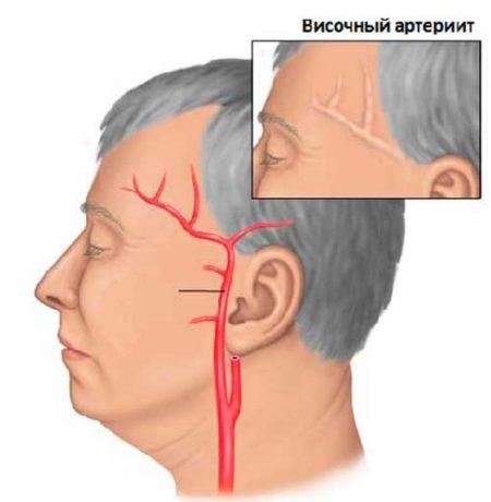 Гигантоклеточный артериит