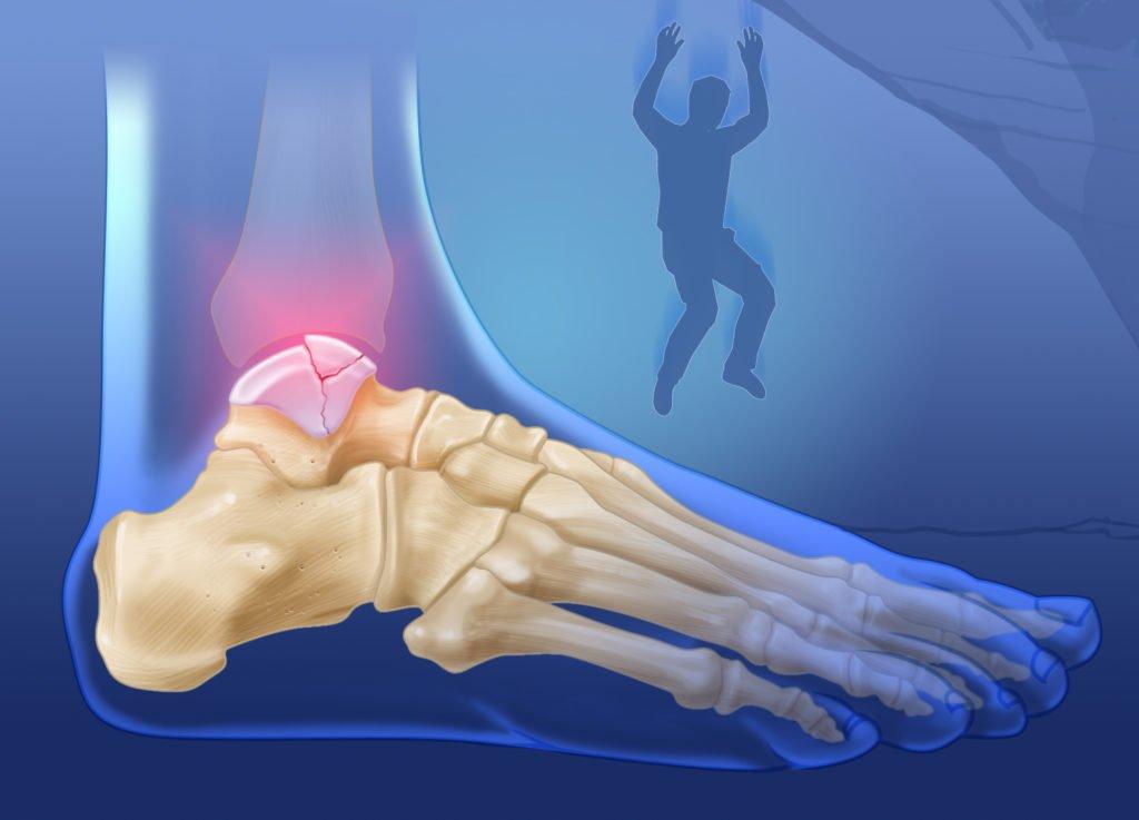Травма таранной кости после прыжка