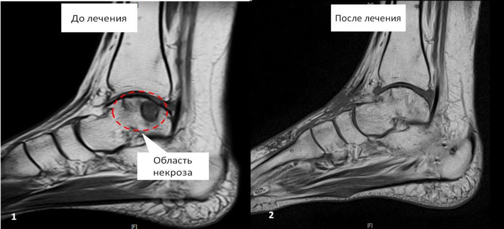 Сравнение двух снимков до и после лечения