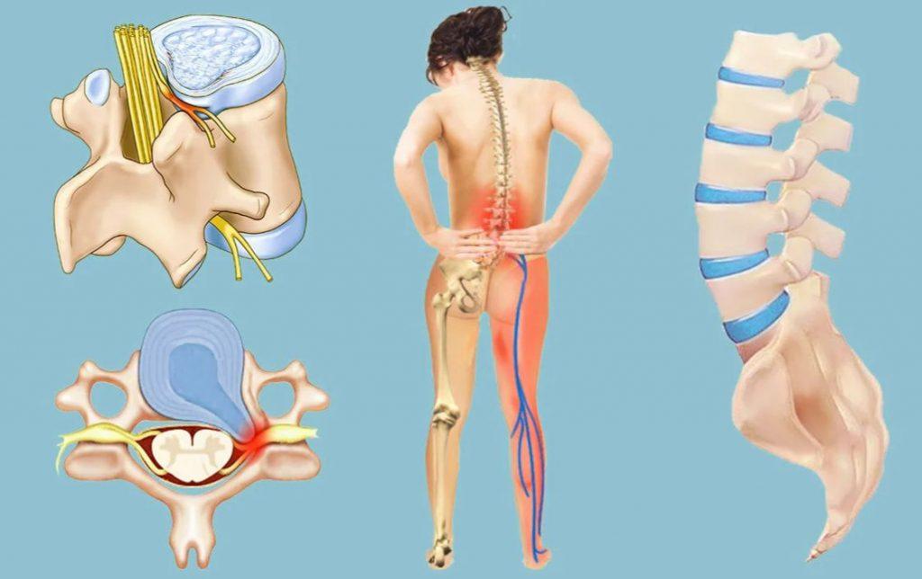 Ущемление нерв в поясничной области и нарушение чувствительности в ноге