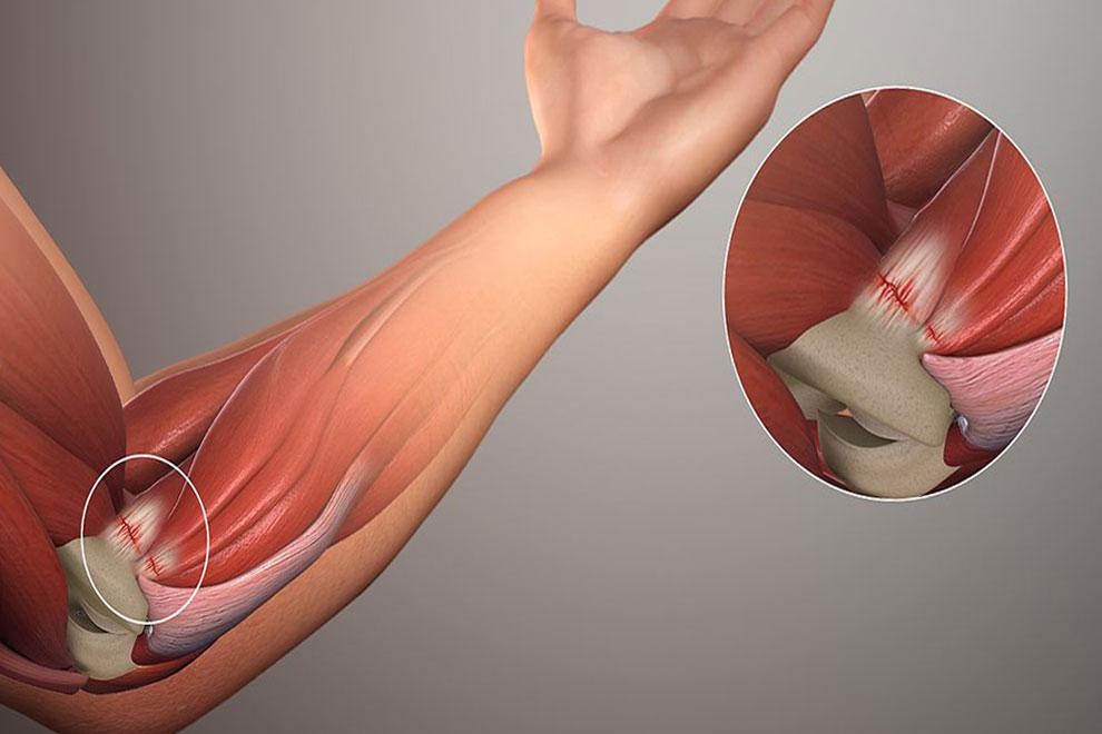Надрыв сухожилий локтевого сустава