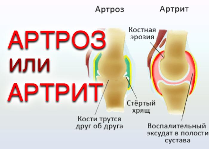 Сравнение артрита и артроза