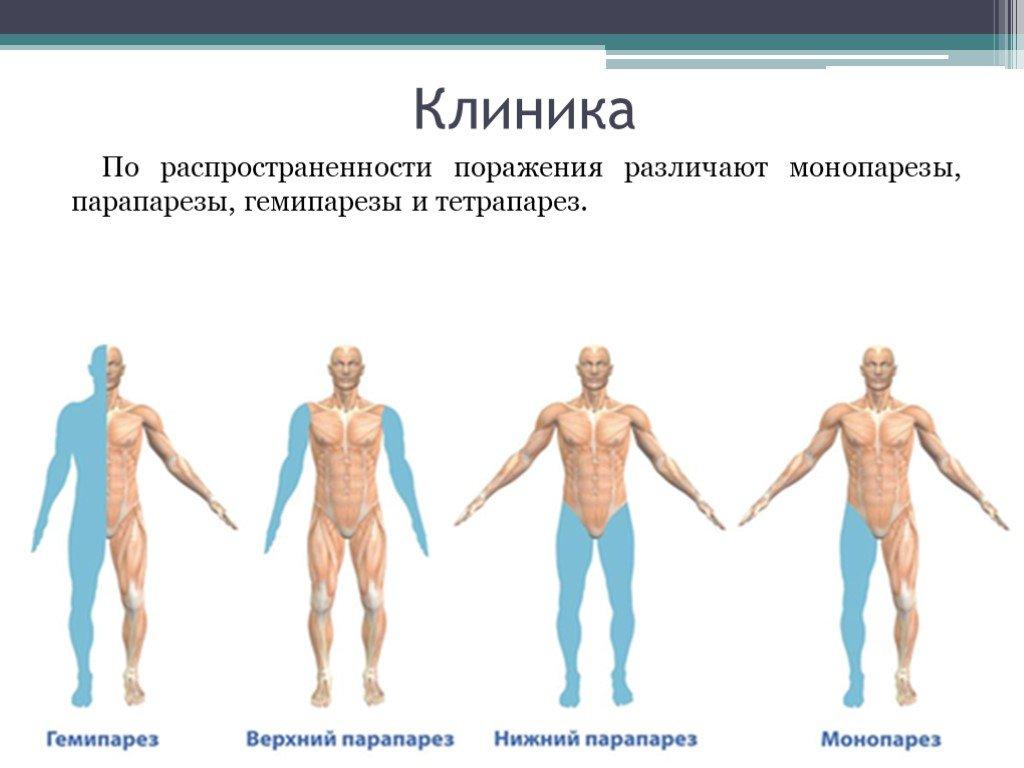 Клинические виды парезов