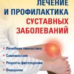«Лечение и профилактика суставных заболеваний», Людмила Рудницкая