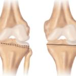 Околосуставная остеотомия